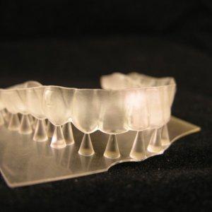 Drukarki dentystyczne 3D