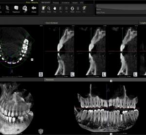 Tomograf stomatologiczny CTCB Volux firmy Genoray
