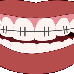 orthodontics-3109763_1280