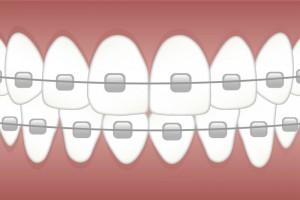Poszukujemy Ortodonty - Kielce