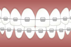 Poszukujemy Lekarza Ortodonty  w Jeleniej Górze