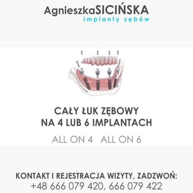 Implanty Zębów Agnieszka Sicińska