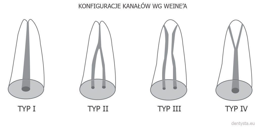 Konfiguracje kanałów zębowych